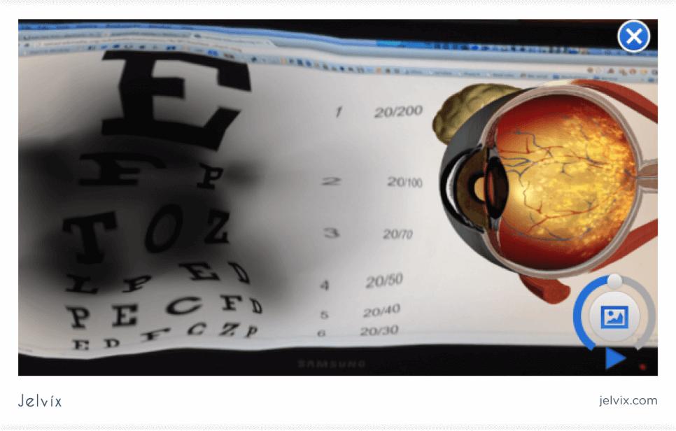patient's vision